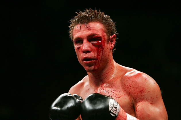 Michael Katsidis bled from terrible gashes around his left eye during his slugfest with Czar Amonsot in 2007. Photo by Ethan Miller-Getty Images