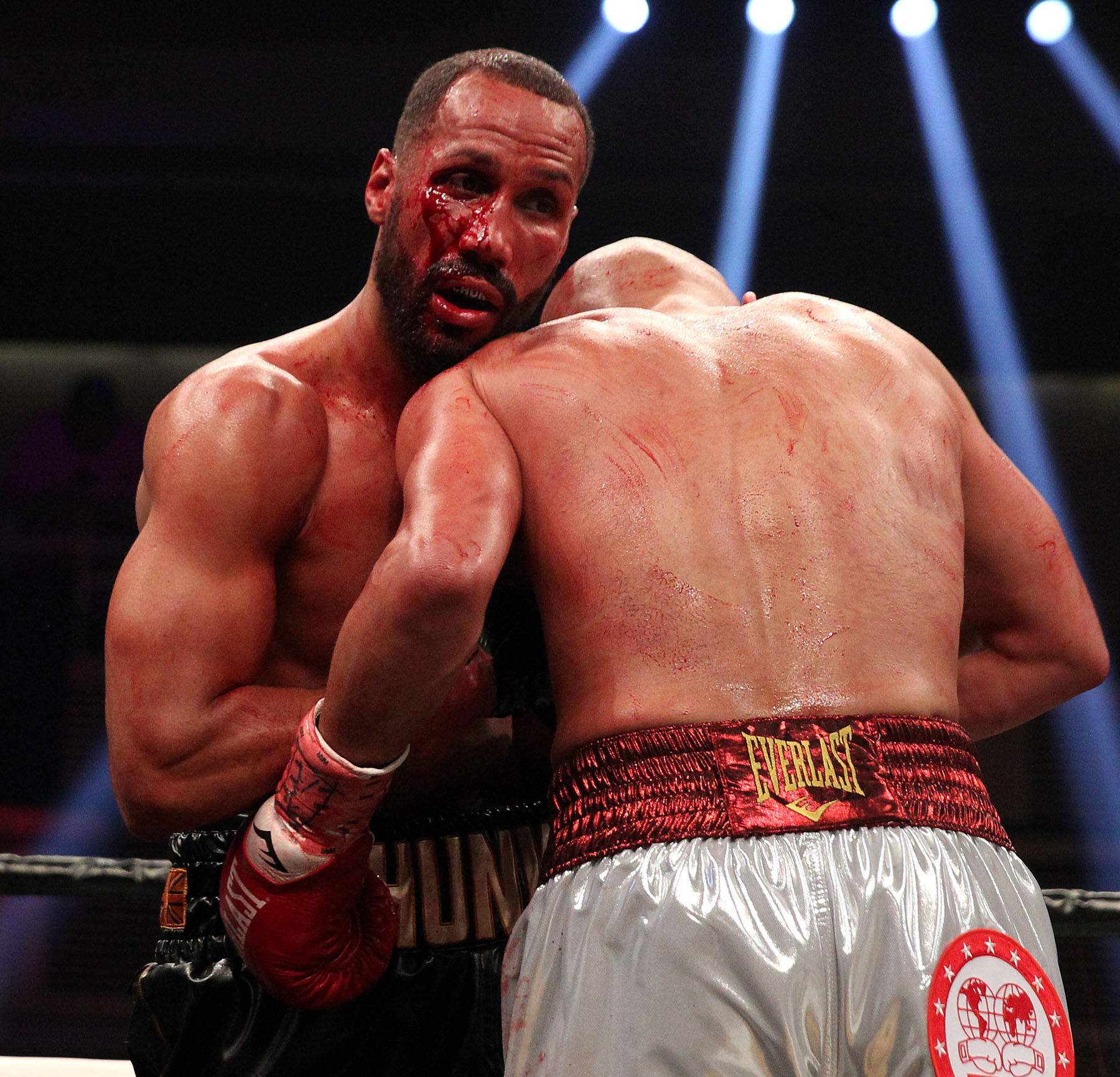 James Degale Deals With Bloody Eye Edges Caleb Truax To