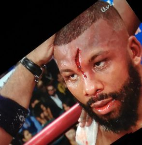 Badou Jack hatchet wound 294x300 - Marcus Browne dominates bloodied Badou Jack via decision in breakthrough performance