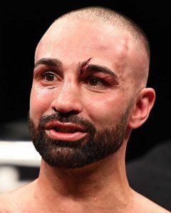 Paulie Malignaggi after Lobov fight Matt Heasley 240x300 - Paulie Malignaggi loses decision to MMA fighter Artem Lobov in Bare Knuckle bout