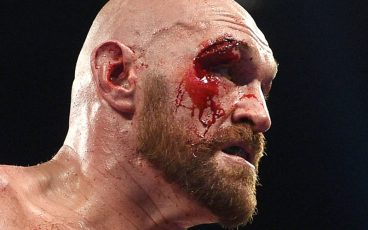 Tyson Fury vs. Otto Wallin was gory – in a good way