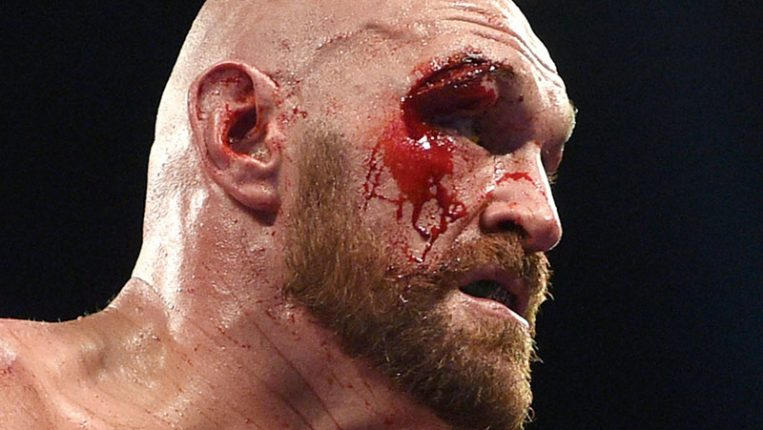 Bloody Success Tyson Fury vs. Otto Wallin was gory – in a good way By Tris Dixon