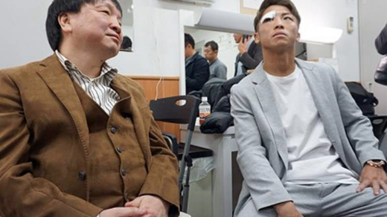 Naoya Inoue reveals that he suffered eye socket fractures in war with Nonito Donaire