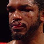 tureano johnson lip 150x150 - Jaime Munguia stops Tureano Johnson after round 6 due to freak lip cut