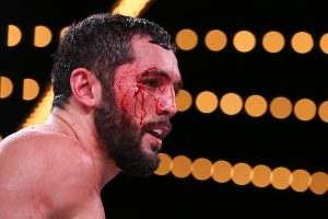 Akavov bloody face Ed Mulholland Matchroom USA 300x200 - Demetrius Andrade stops Artur Akavov in 12, retains WBO middleweight belt